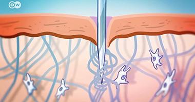 筋膜的秘密:手法,针灸,癌症和未来(下集)