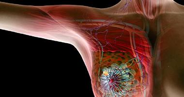 【文摘共赏】筋膜与女性健康:筋膜放松与乳腺癌